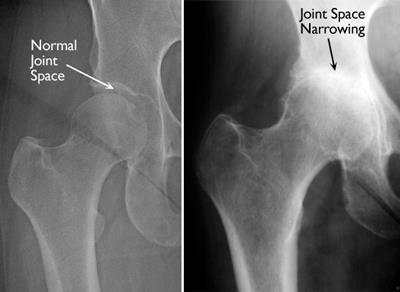 X-ray of patient after hip stem cell therapy in la