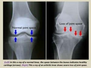 knee pain from osteoarthritis