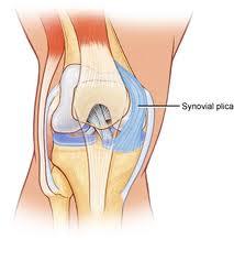 knee plica syndrome dr. lox