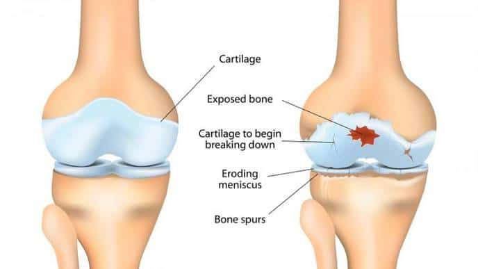 picture of before and after knee arthritis