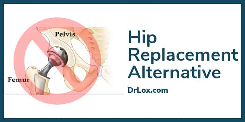 hip replacement alternative