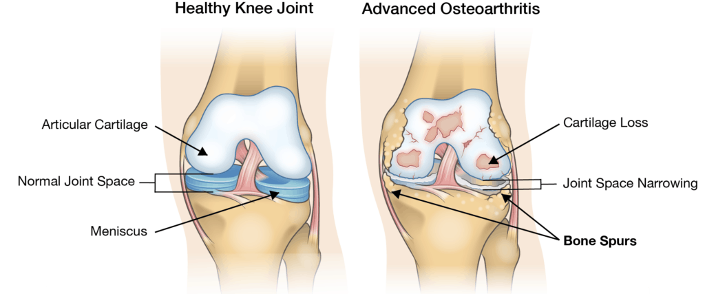 Stem Cell Therapy Can Help Knee Arthritis
