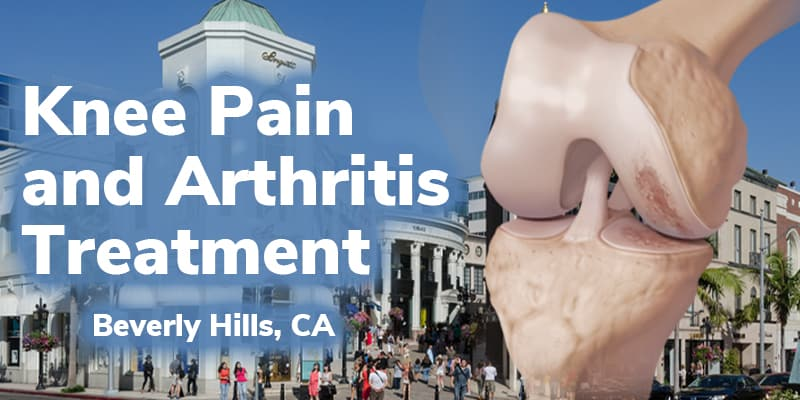 knee pain and arthritis treatment in beverly hills, ca